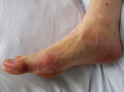 Gout symptoms in the foot